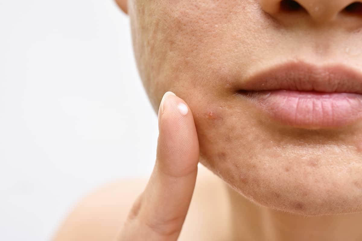 Je bekijkt nu Jeugdpuistjes die niet verdwijnen… Welke acné behandeling werkt?